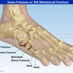 Jones-Fracture